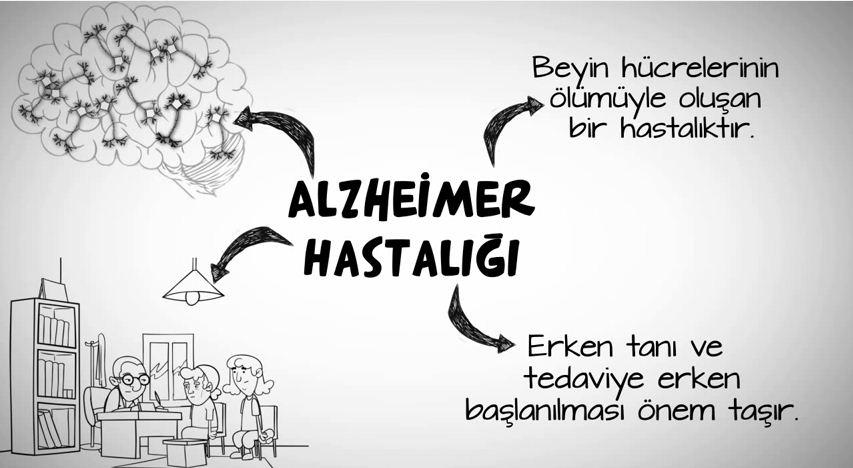 alzheimer_1